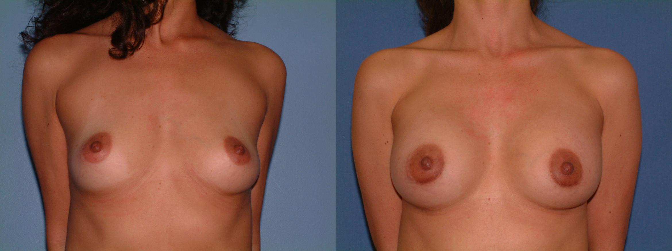 Breast Augmentation Case 16 Before & After View #1 | Downers Grove, IL | Dr. Sandeep Jejurikar