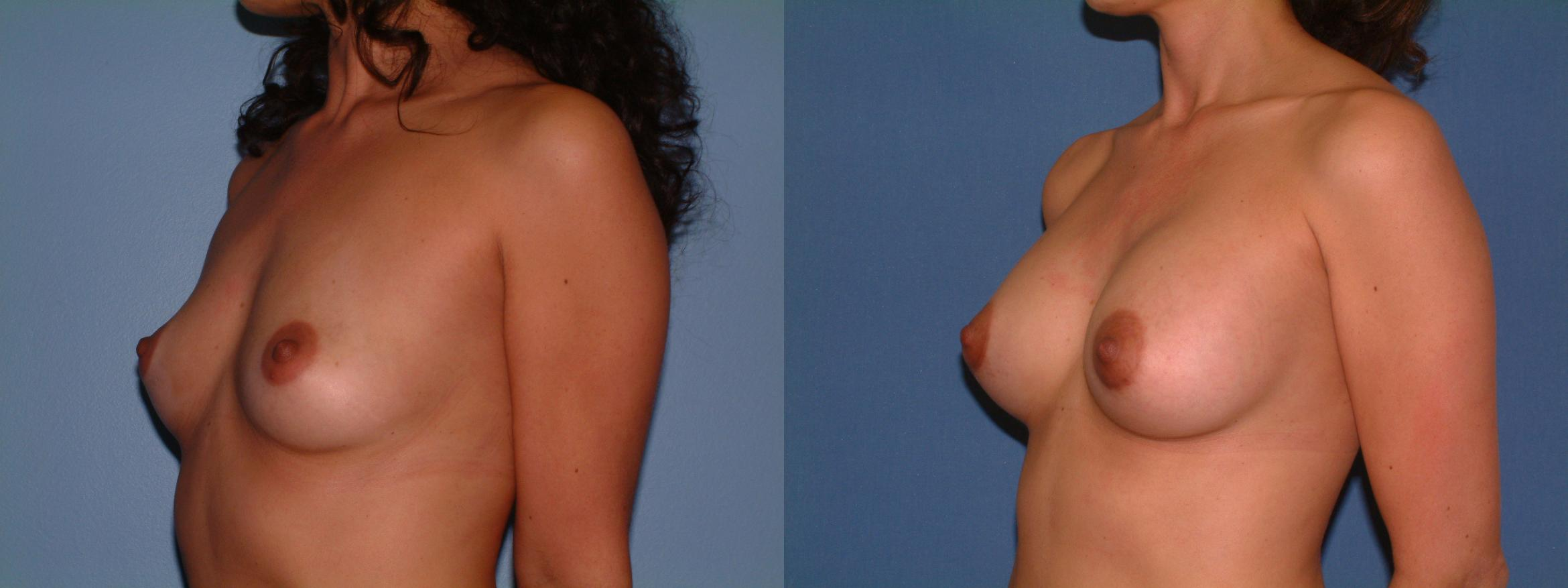 Breast Augmentation Case 16 Before & After View #2 | Downers Grove, IL | Dr. Sandeep Jejurikar