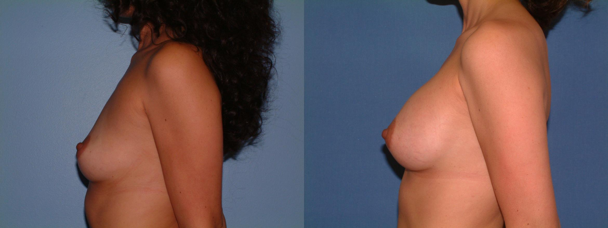 Breast Augmentation Case 16 Before & After View #3 | Downers Grove, IL | Dr. Sandeep Jejurikar