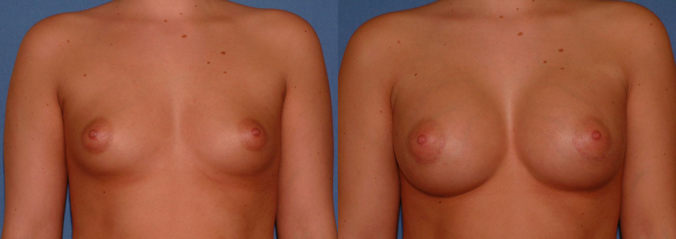Breast Augmentation Case 28 Before & After View #1 | Downers Grove, IL | Dr. Sandeep Jejurikar