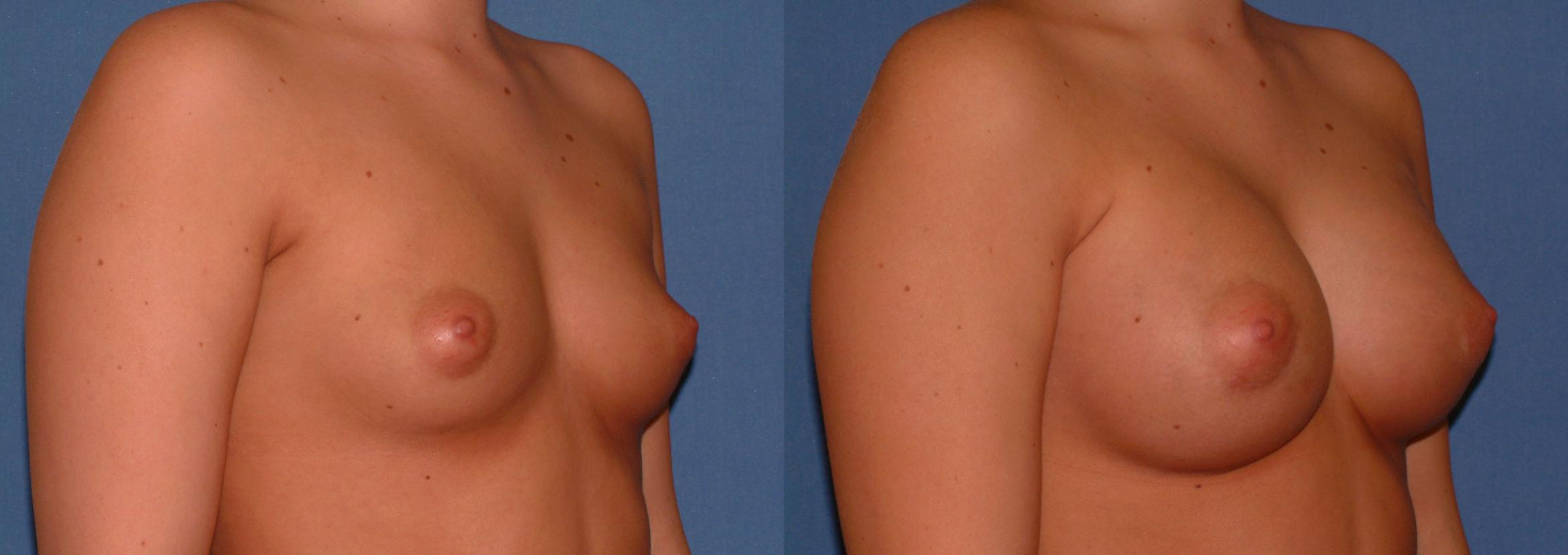 Breast Augmentation Case 28 Before & After View #2 | Downers Grove, IL | Dr. Sandeep Jejurikar