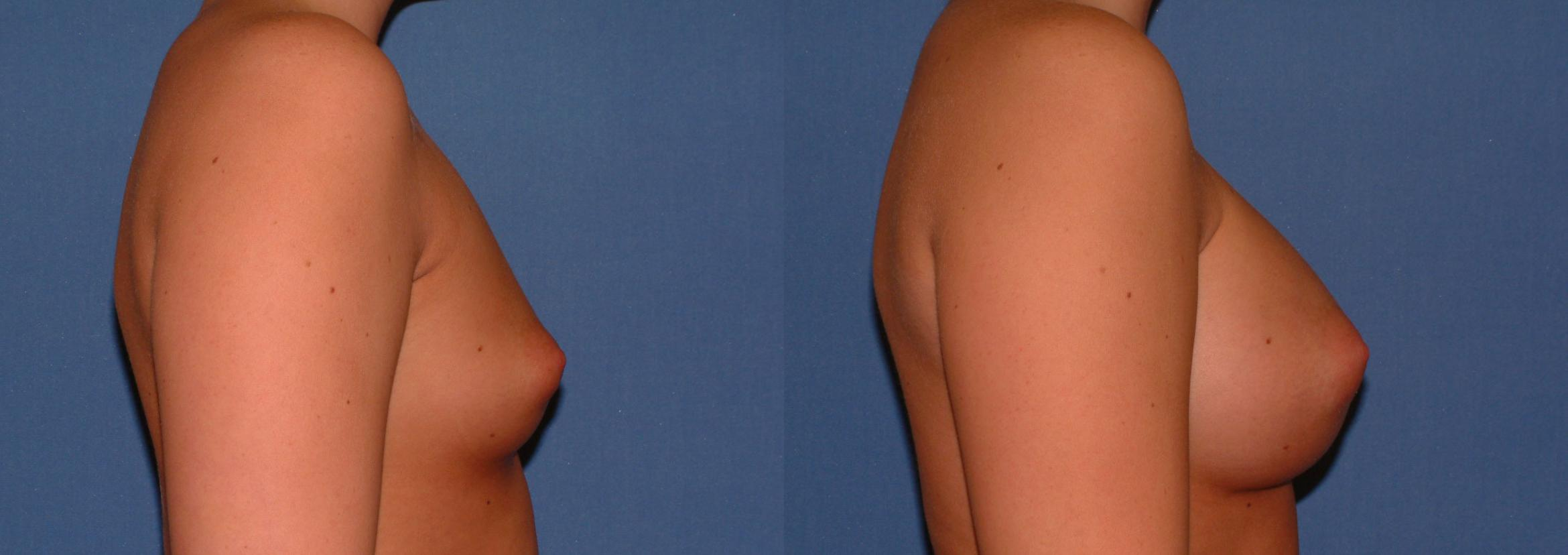 Breast Augmentation Case 28 Before & After View #3 | Downers Grove, IL | Dr. Sandeep Jejurikar