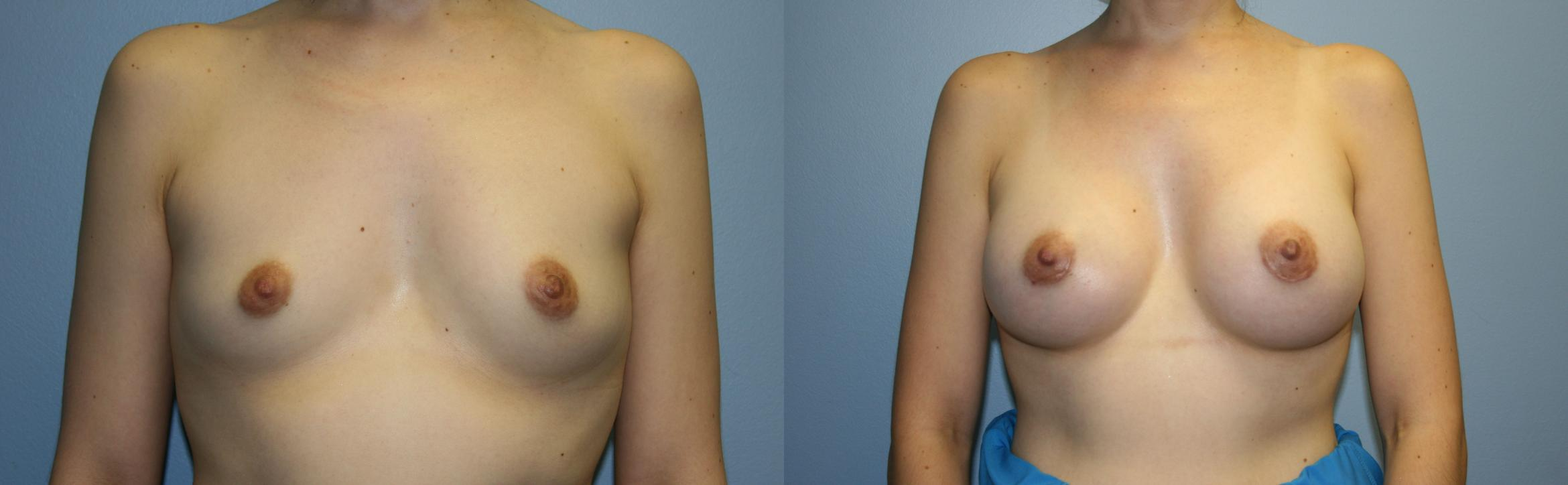Breast Augmentation Case 33 Before & After View #1 | Downers Grove, IL | Dr. Sandeep Jejurikar