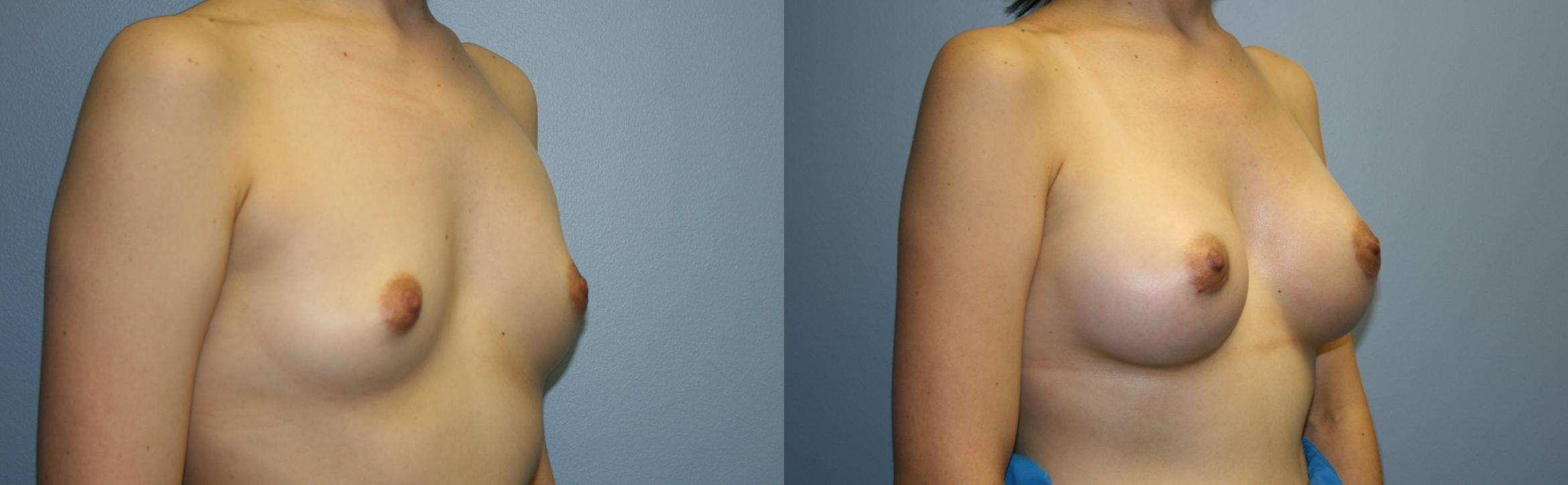 Breast Augmentation Case 33 Before & After View #2 | Downers Grove, IL | Dr. Sandeep Jejurikar
