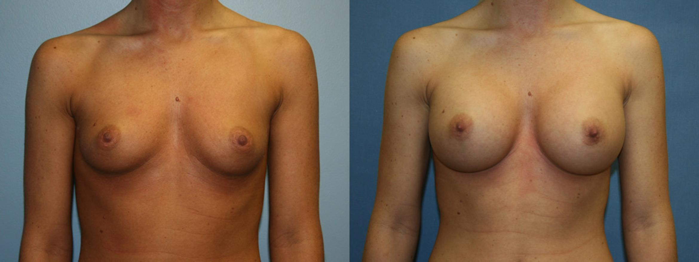 Breast Augmentation Case 4 Before & After View #1 | Downers Grove, IL | Dr. Sandeep Jejurikar