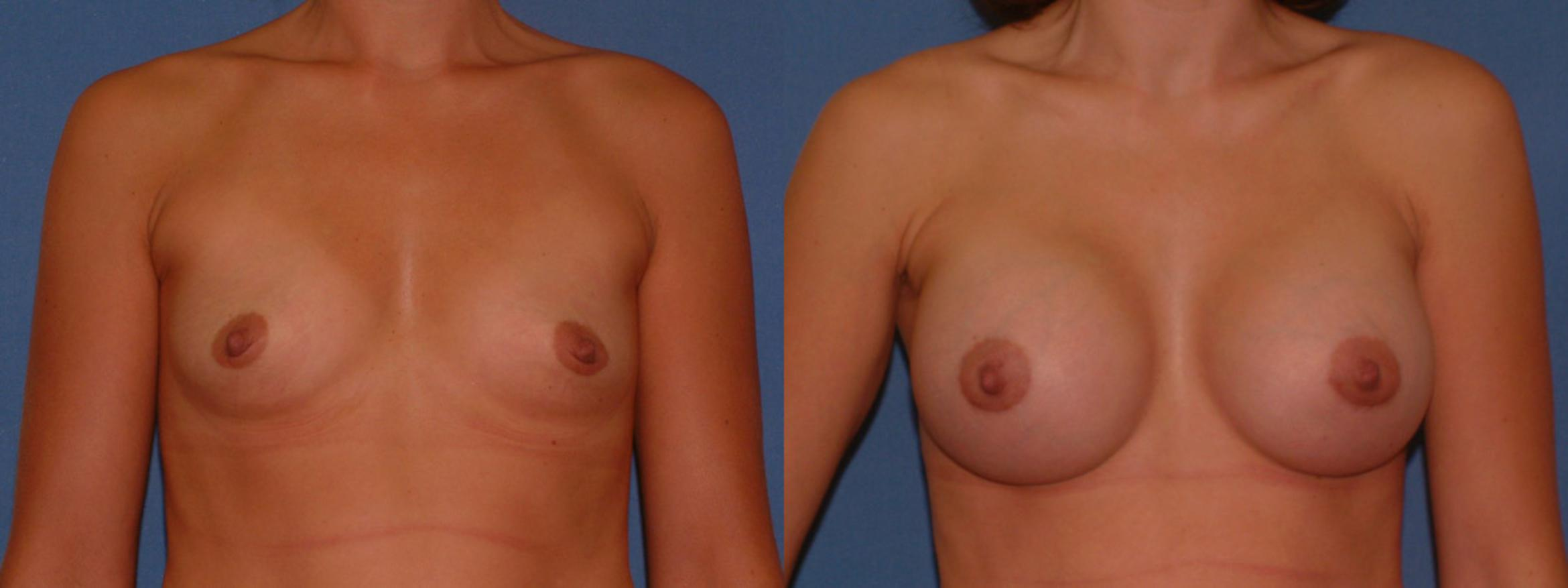 Breast Augmentation Case 5 Before & After View #1 | Downers Grove, IL | Dr. Sandeep Jejurikar