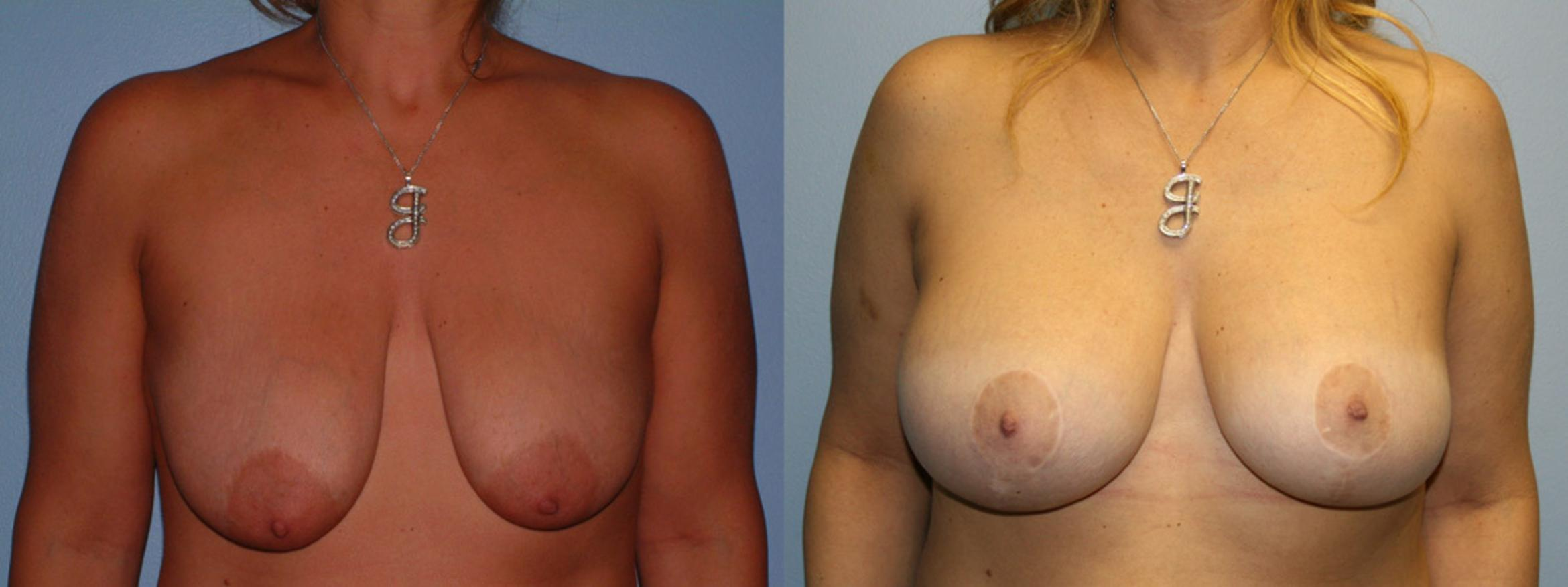 Breast Lift Case 1 Before & After View #1 | Downers Grove, IL | Dr. Sandeep Jejurikar