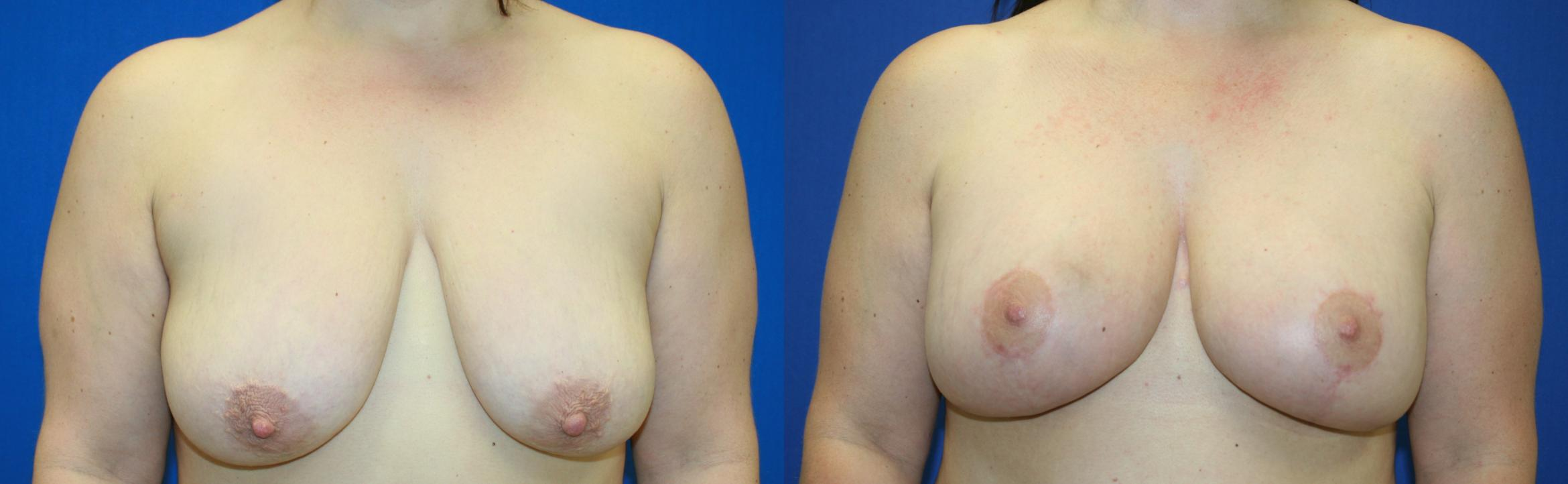 Breast Lift Case 43 Before & After View #1 | Downers Grove, IL | Dr. Sandeep Jejurikar