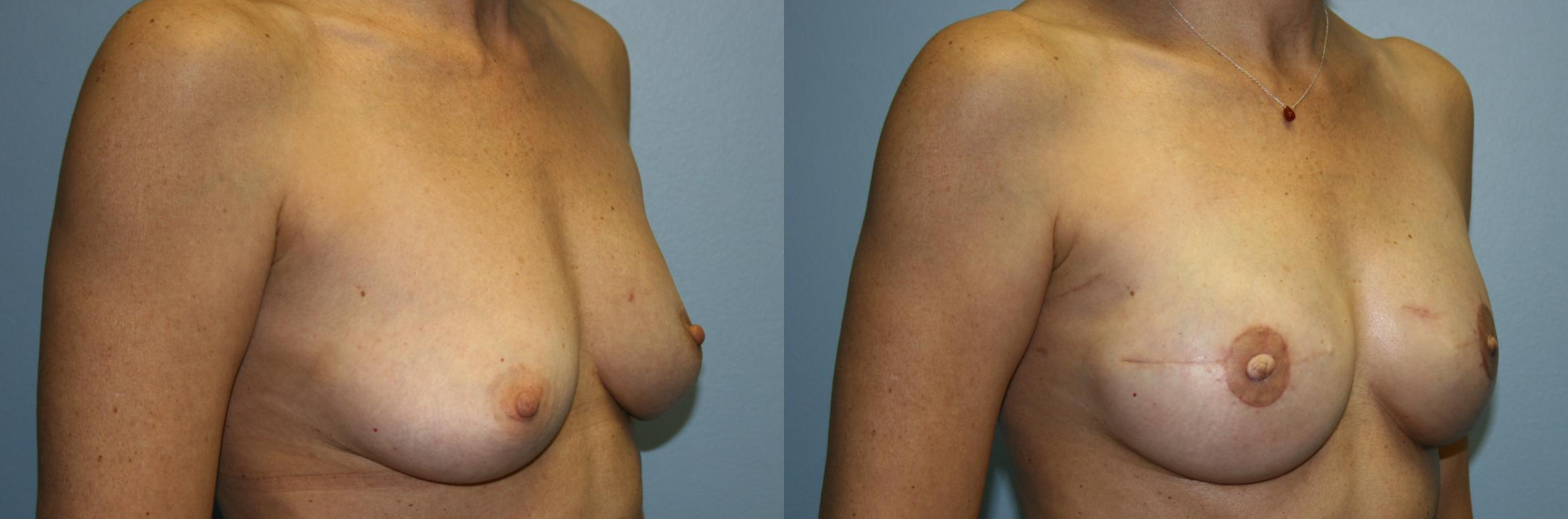 Breast Reconstruction Case 50 Before & After View #2 | Downers Grove, IL | Dr. Sandeep Jejurikar
