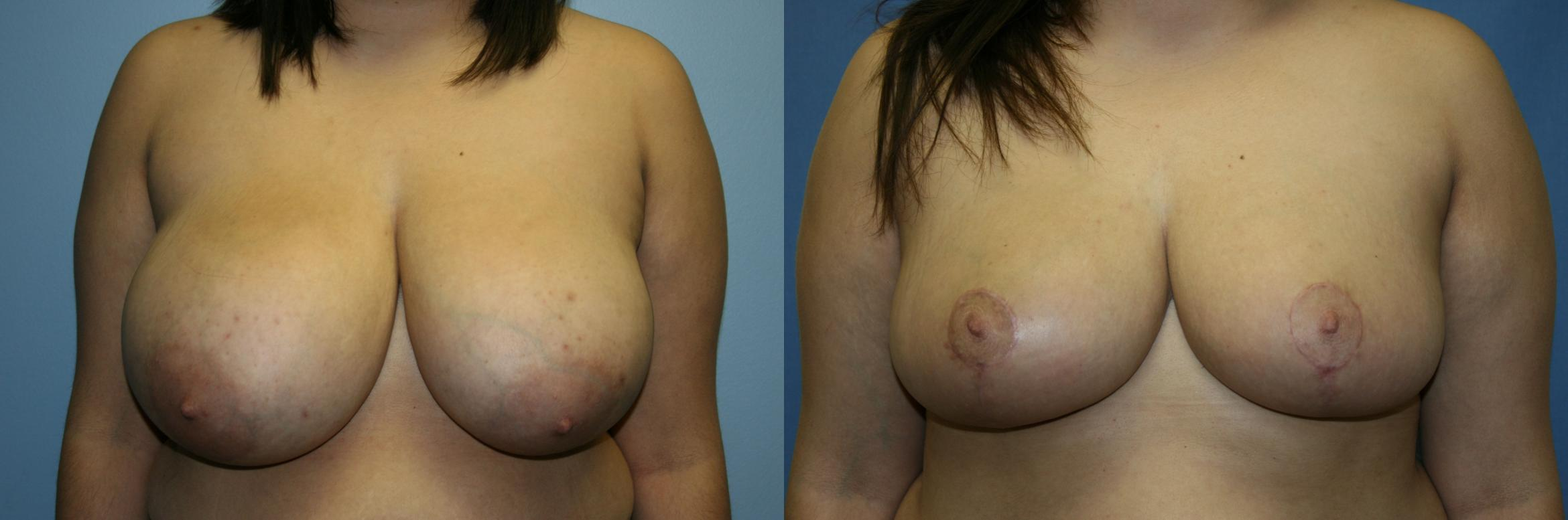 Breast Reduction Case 49 Before & After View #1 | Downers Grove, IL | Dr. Sandeep Jejurikar