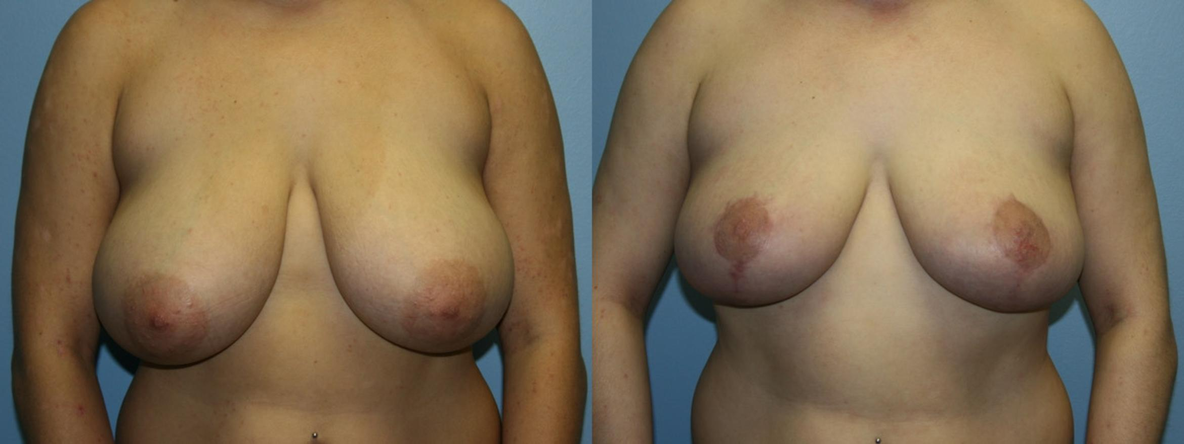 Breast Reduction Case 51 Before & After Front | Downers Grove, IL | Dr. Sandeep Jejurikar