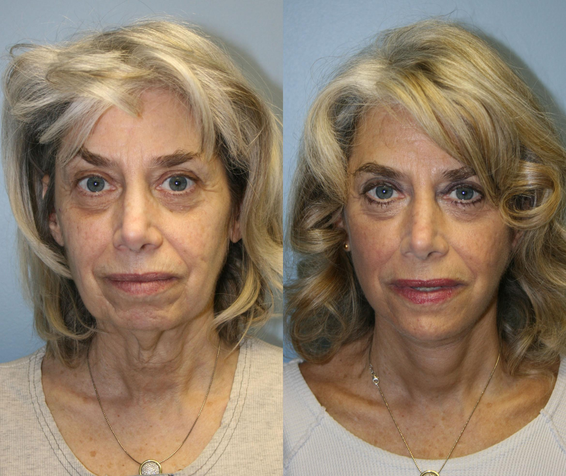 Facelift Case 19 Before & After View #1 | Downers Grove, IL | Dr. Sandeep Jejurikar