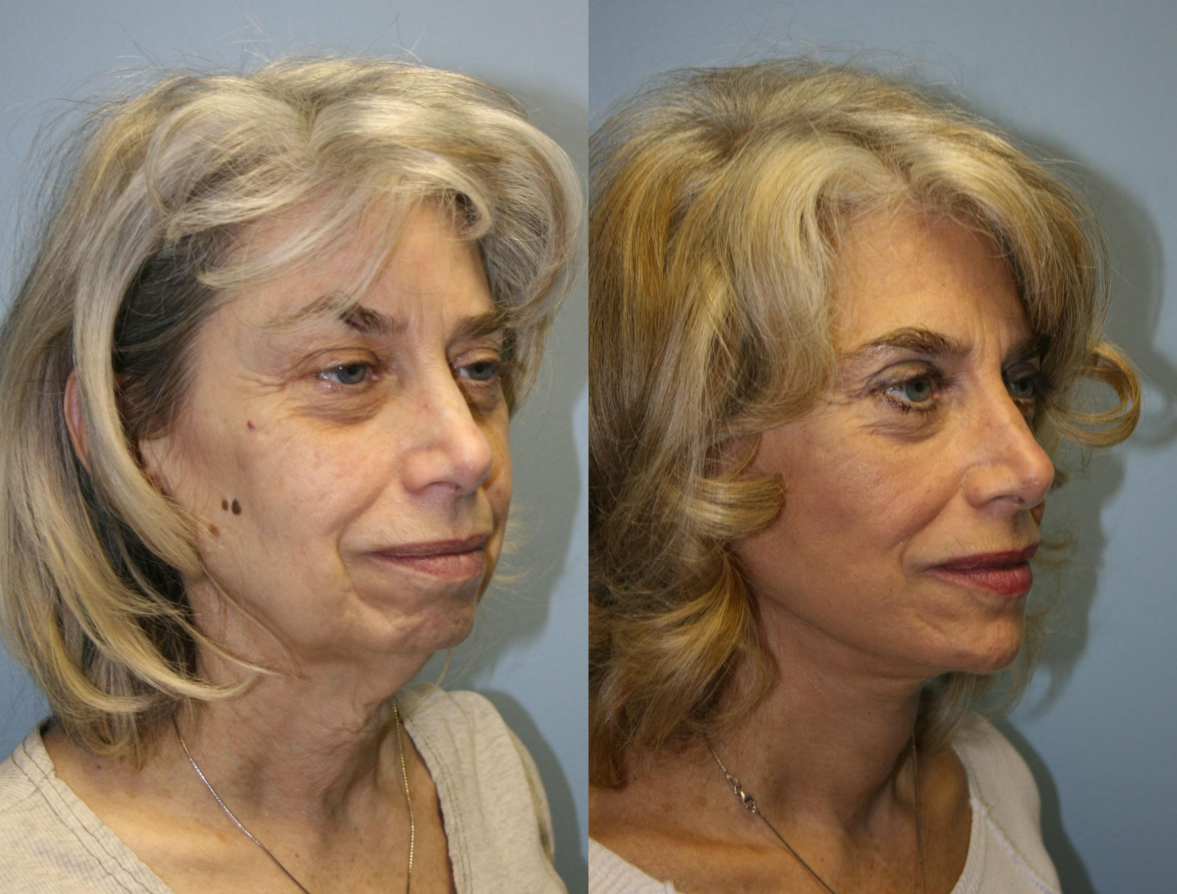 Facelift Case 19 Before & After View #2 | Downers Grove, IL | Dr. Sandeep Jejurikar