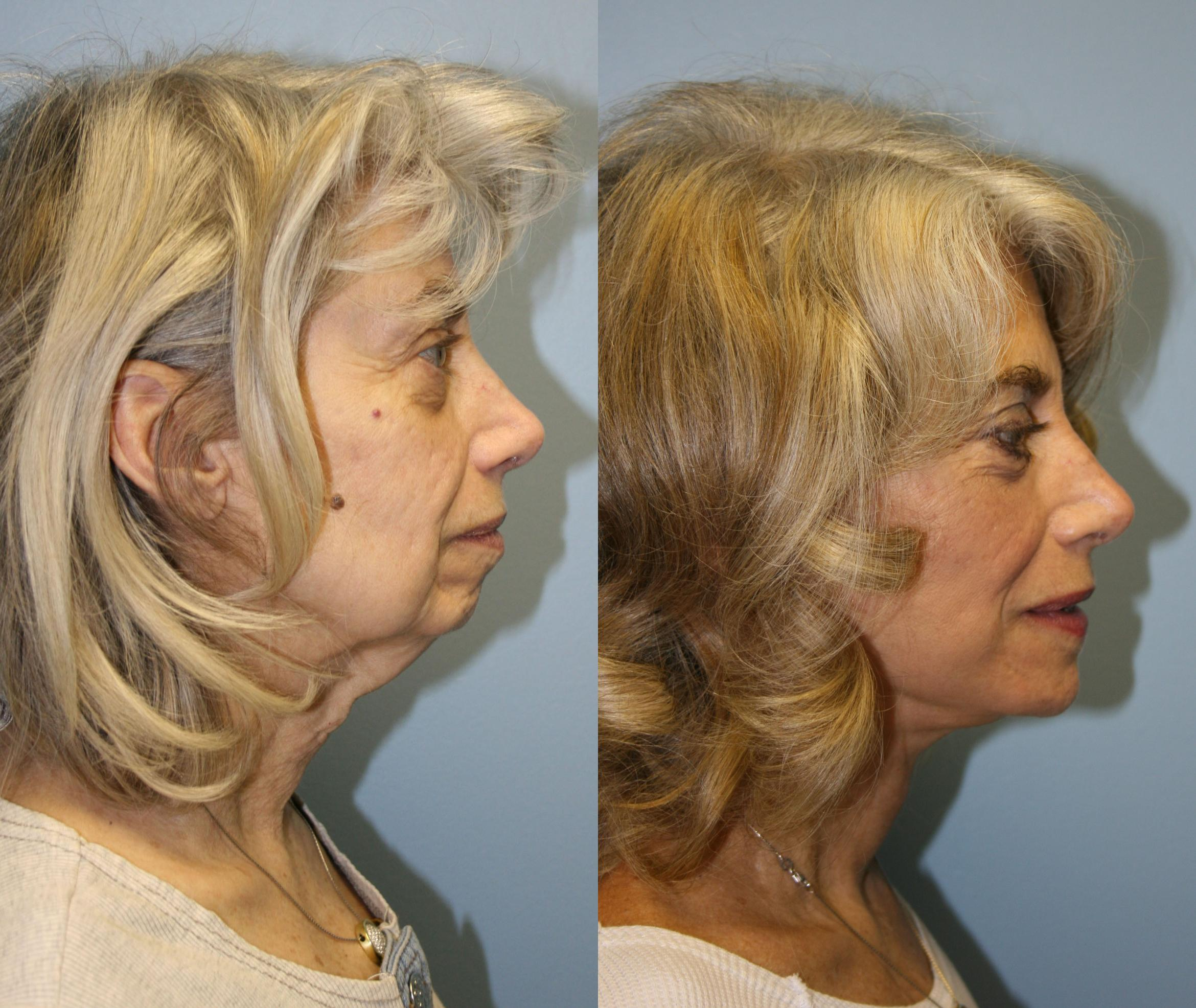 Facelift Case 19 Before & After View #3 | Downers Grove, IL | Dr. Sandeep Jejurikar