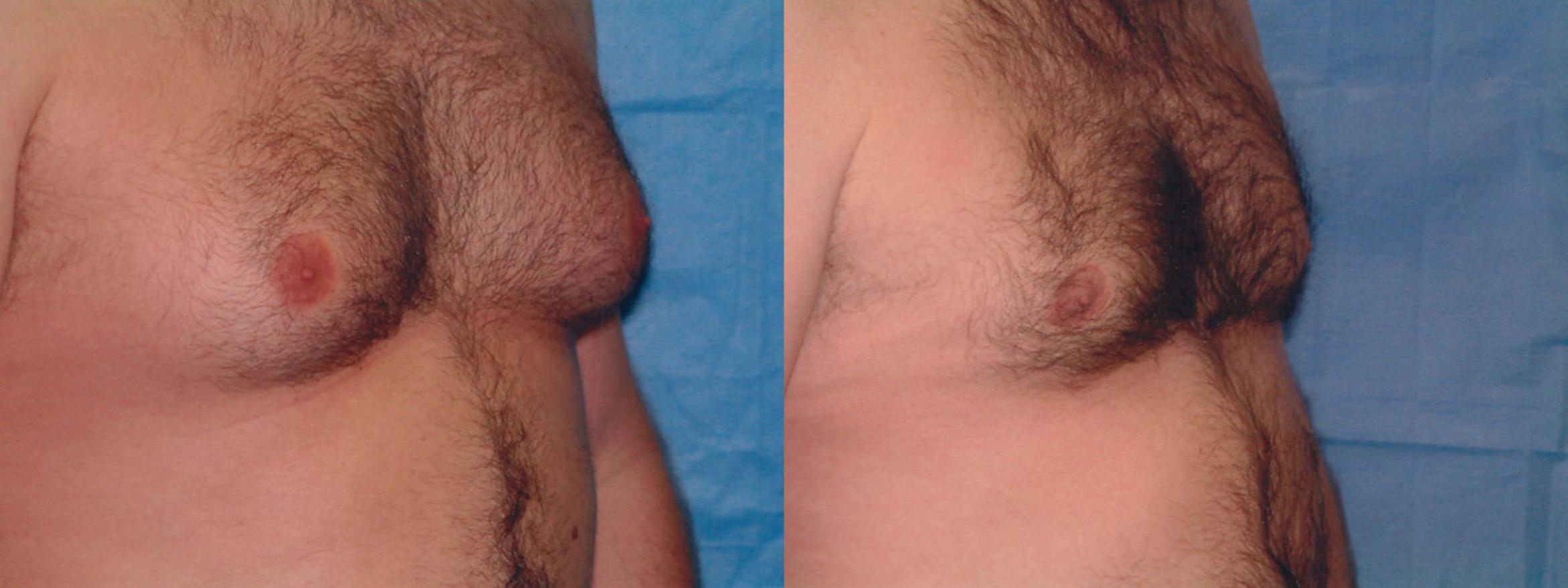 Gynecomastia Case 8 Before & After View #2 | Downers Grove, IL | Dr. Sandeep Jejurikar