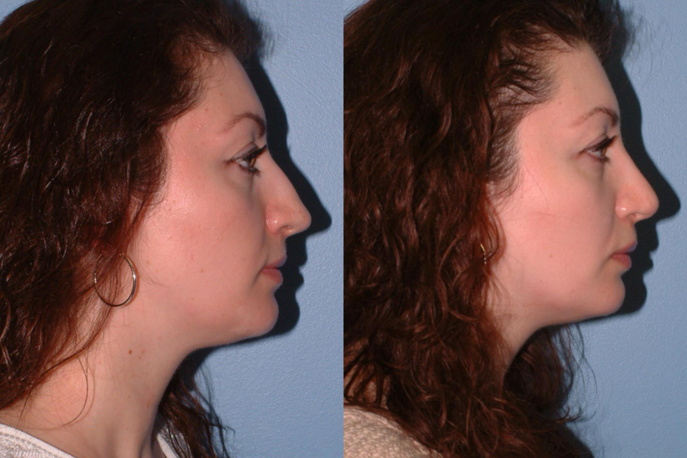 Rhinoplasty Case 11 Before & After View #1 | Downers Grove, IL | Dr. Sandeep Jejurikar