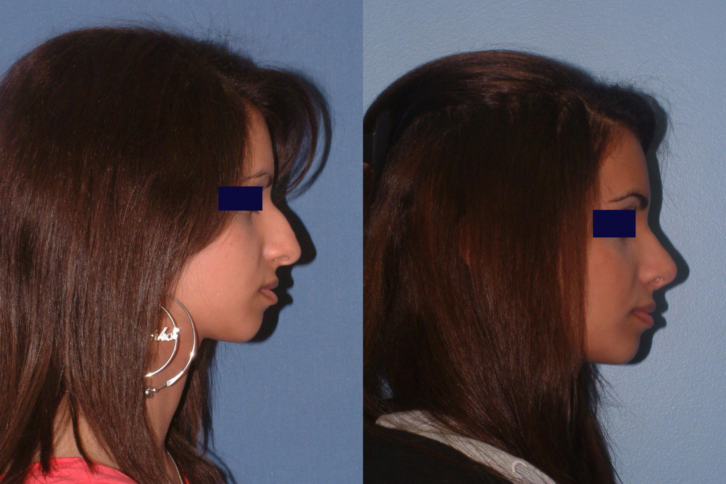 Rhinoplasty Case 15 Before & After View #1 | Downers Grove, IL | Dr. Sandeep Jejurikar