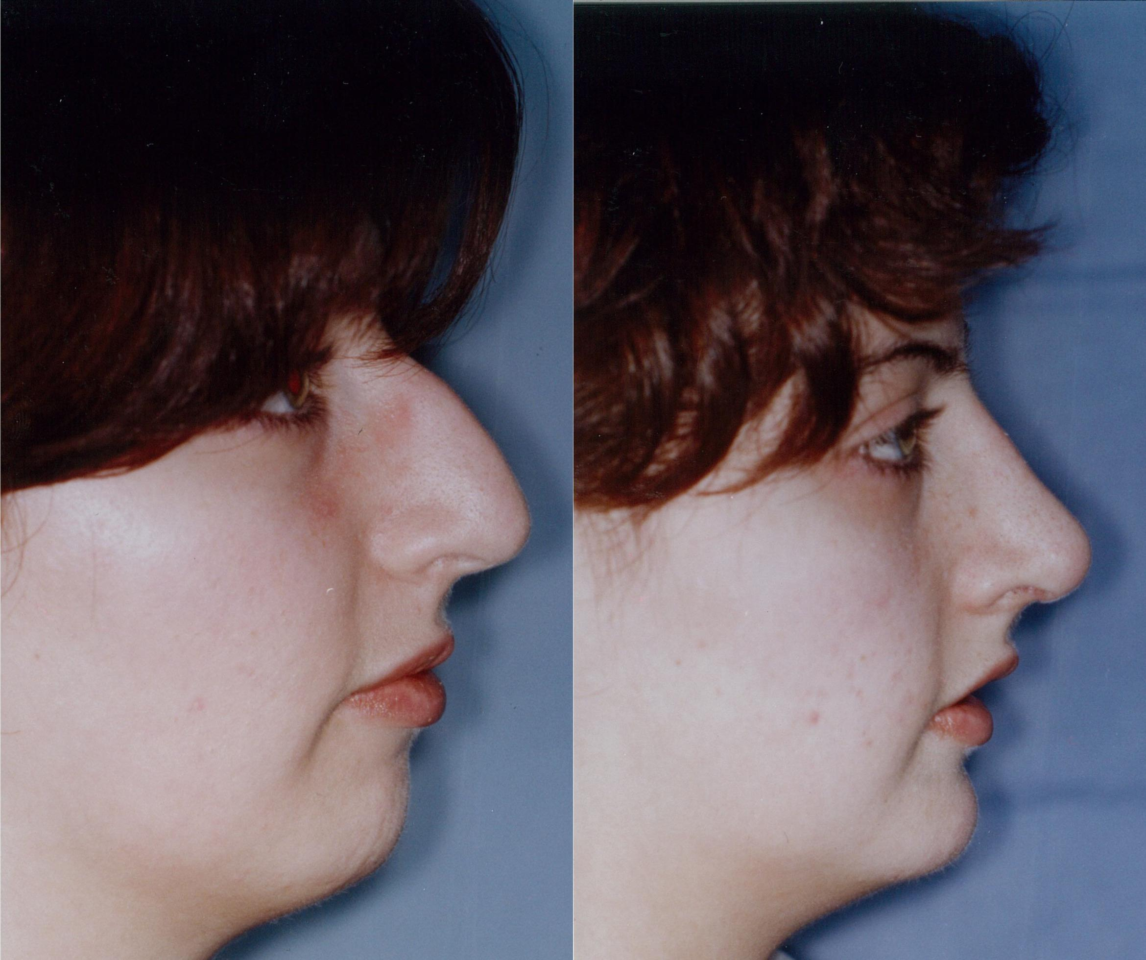 Rhinoplasty Case 42 Before & After View #1 | Downers Grove, IL | Dr. Sandeep Jejurikar