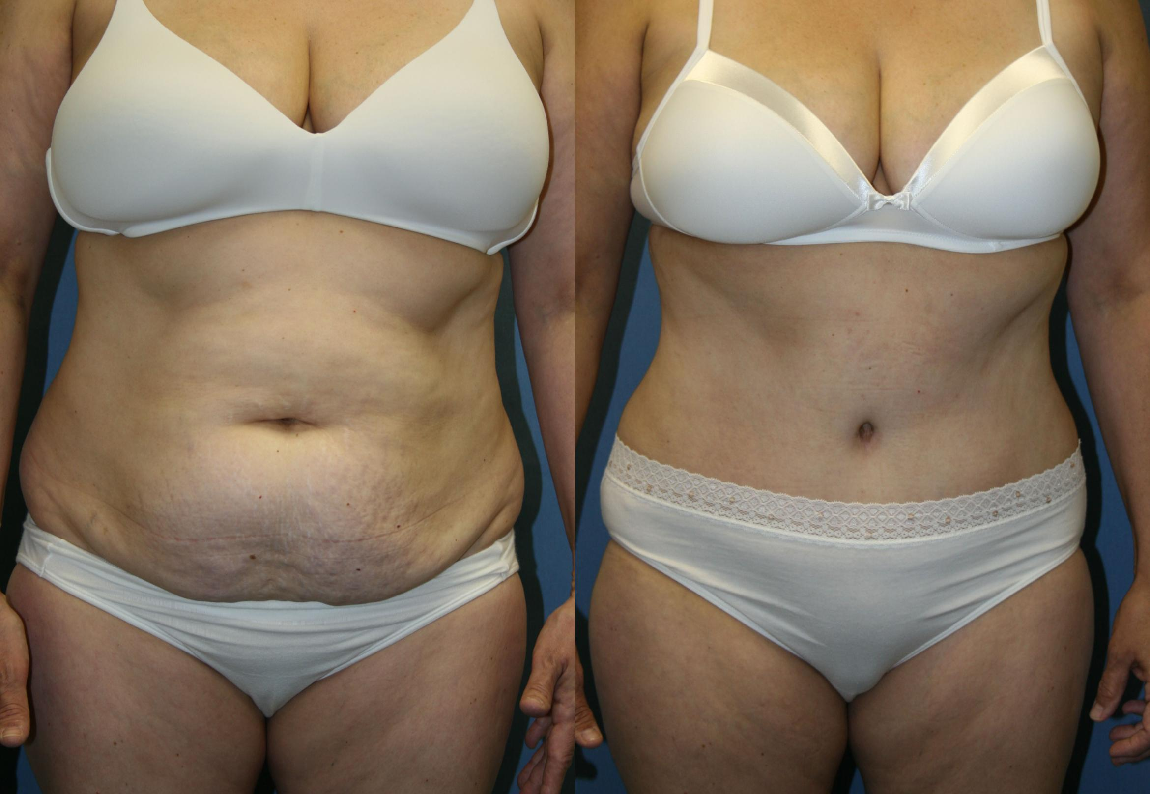 Tummy Tuck Case 23 Before & After View #1 | Downers Grove, IL | Dr. Sandeep Jejurikar