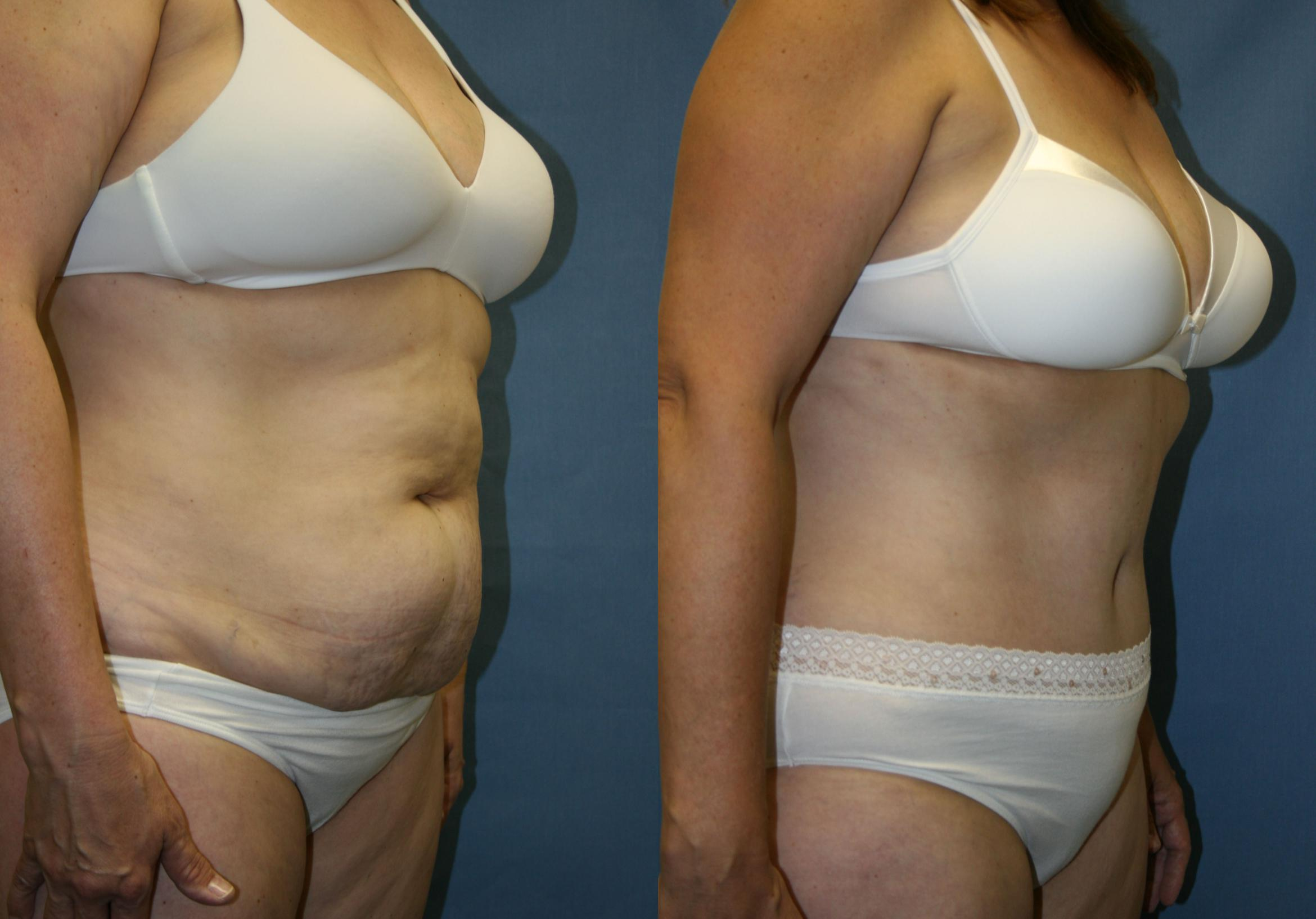Tummy Tuck Case 23 Before & After View #4 | Downers Grove, IL | Dr. Sandeep Jejurikar