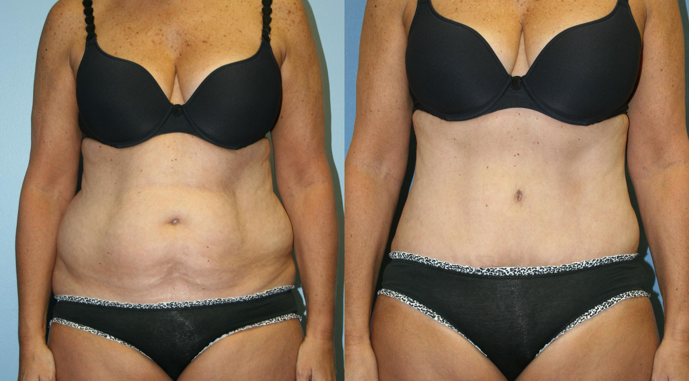 Tummy Tuck Case 30 Before & After View #1 | Downers Grove, IL | Dr. Sandeep Jejurikar