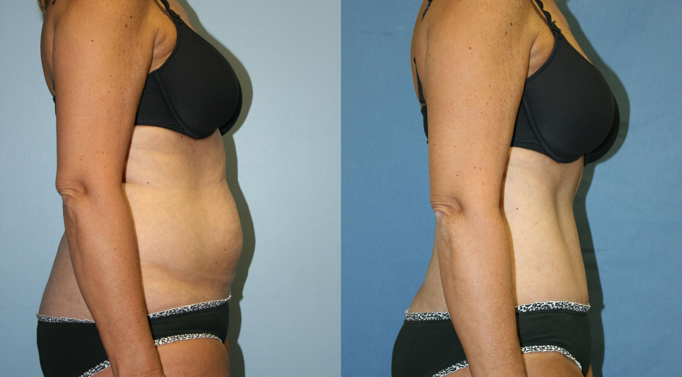 Tummy Tuck Case 30 Before & After View #3 | Downers Grove, IL | Dr. Sandeep Jejurikar