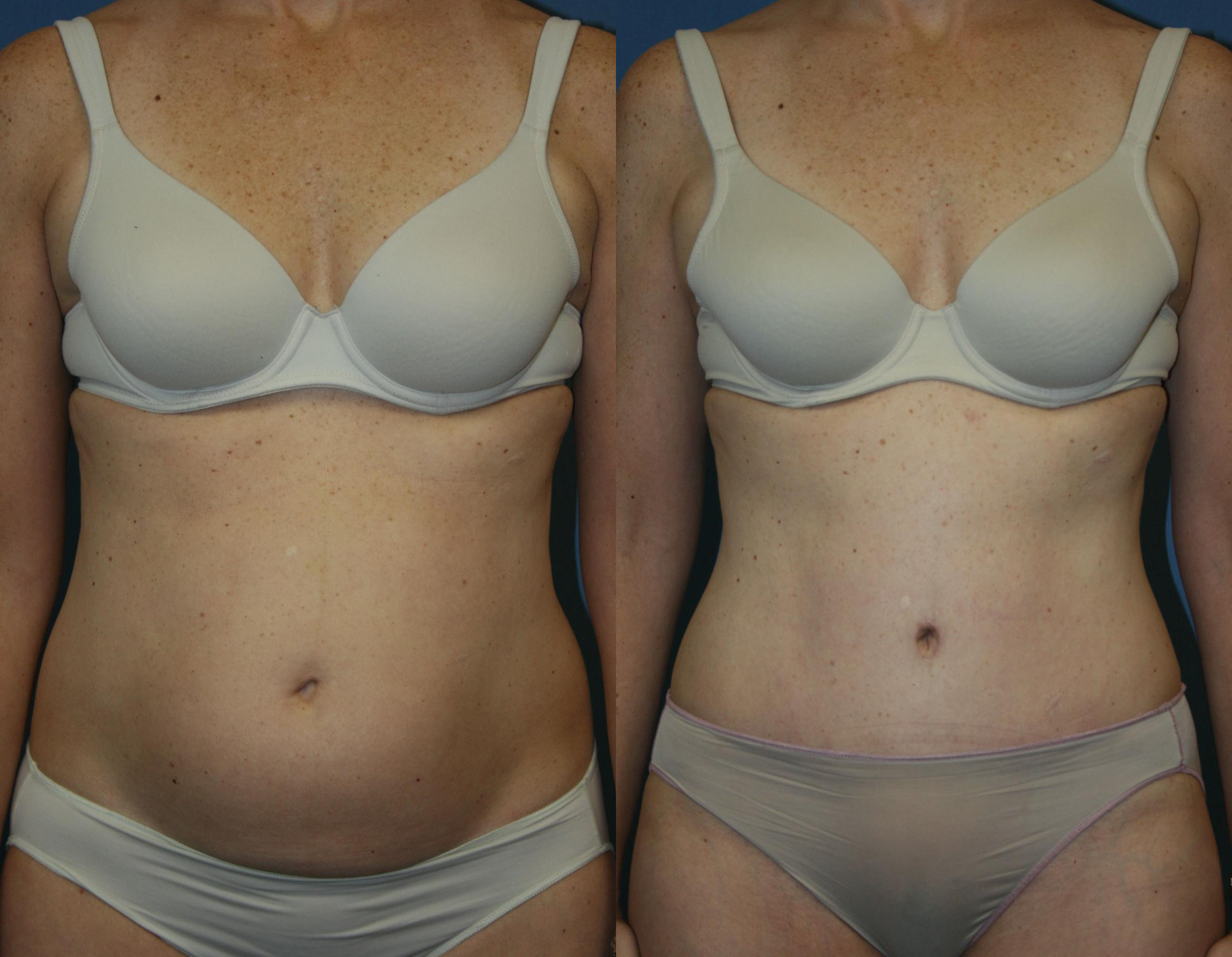 Tummy Tuck Case 39 Before & After View #1 | Downers Grove, IL | Dr. Sandeep Jejurikar