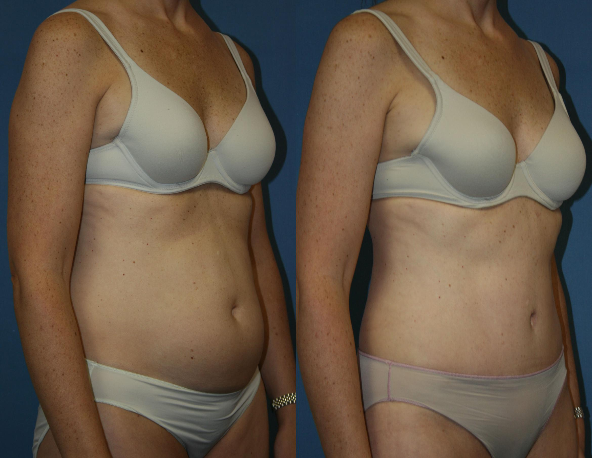 Tummy Tuck Case 39 Before & After View #2 | Downers Grove, IL | Dr. Sandeep Jejurikar