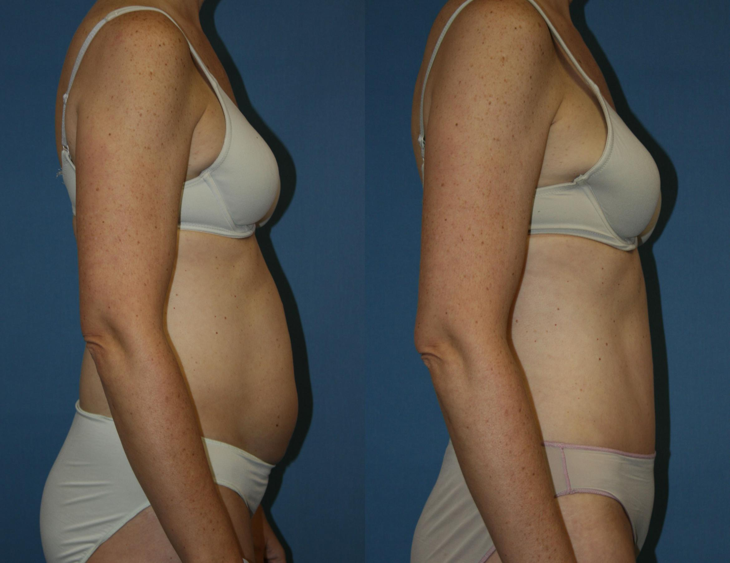 Tummy Tuck Case 39 Before & After View #5 | Downers Grove, IL | Dr. Sandeep Jejurikar