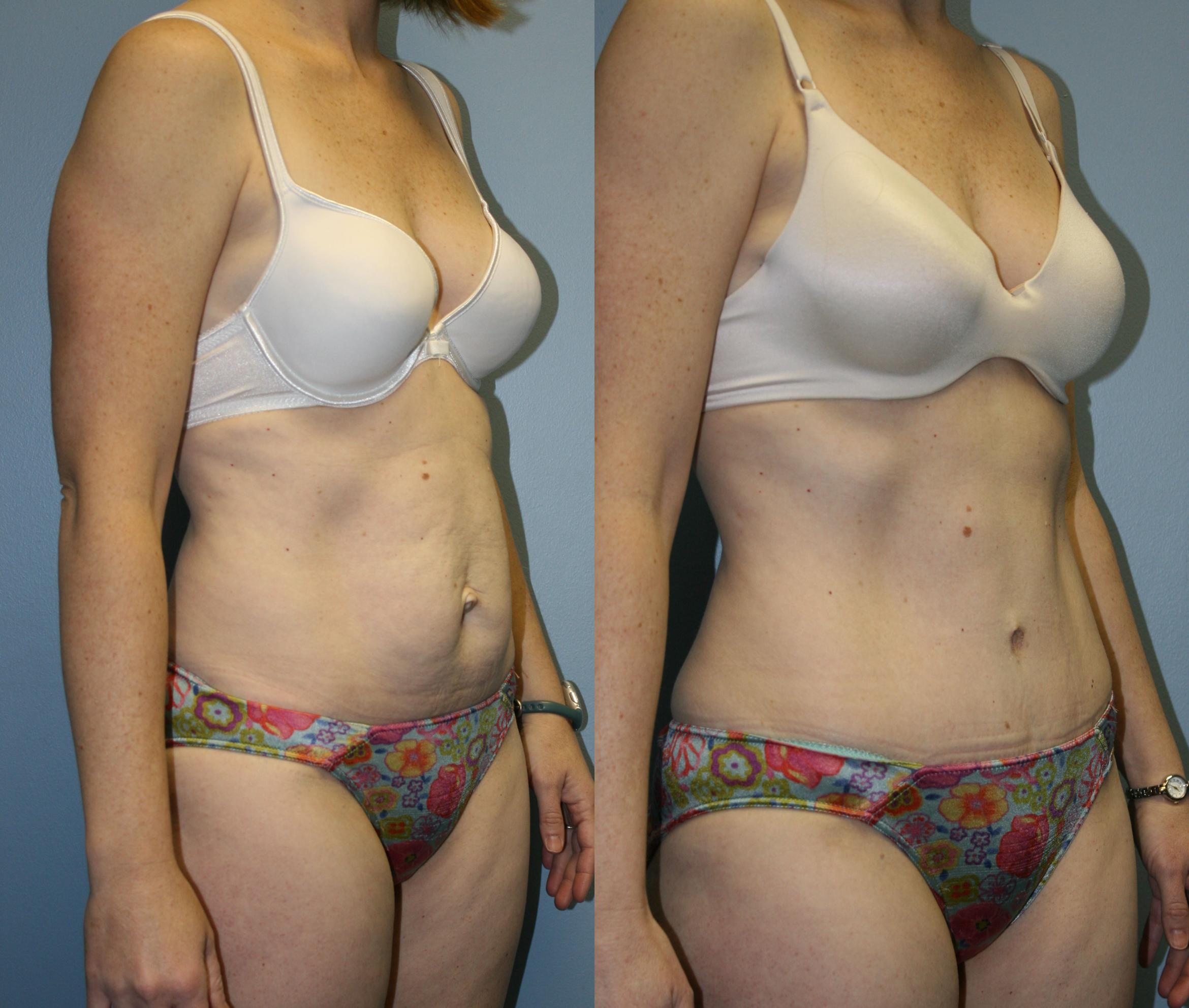 Tummy Tuck Case 40 Before & After View #3 | Downers Grove, IL | Dr. Sandeep Jejurikar