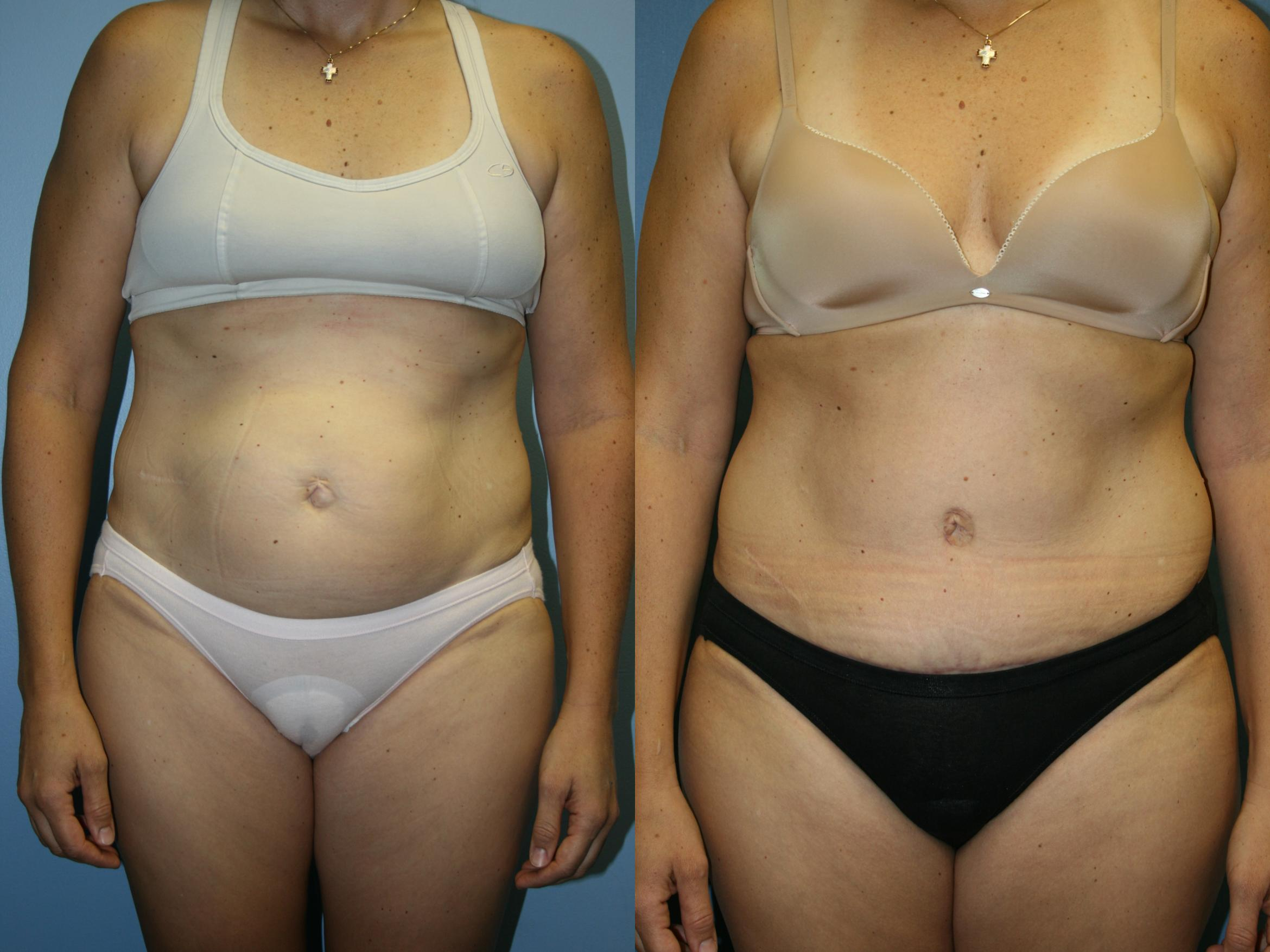 Tummy Tuck Case 41 Before & After View #1 | Downers Grove, IL | Dr. Sandeep Jejurikar
